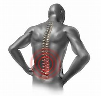 Low Back Pain Myths